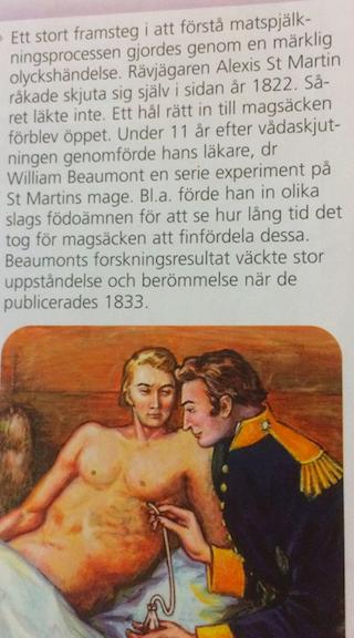 Matspjälknings historik
